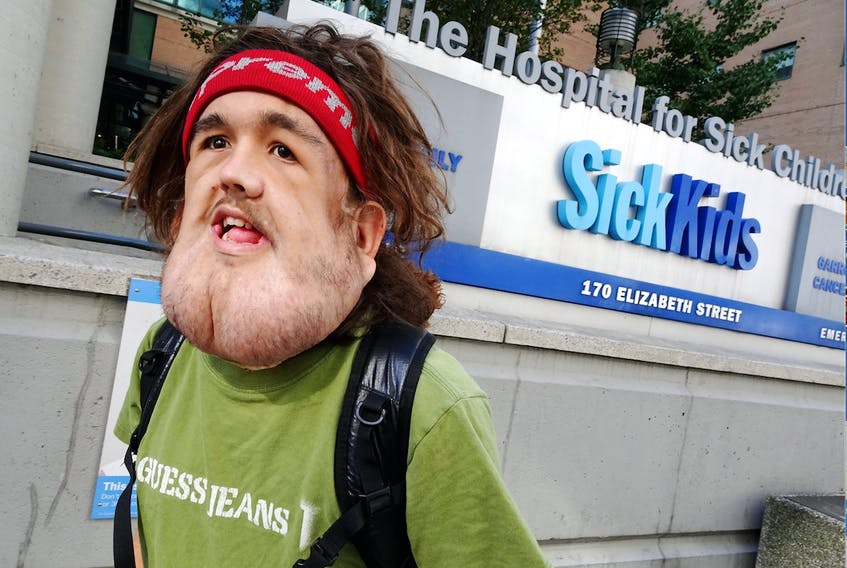 Nick Dismatsek, 20, of Inverness, N.S., who has battled neurofibromatosis his whole life, is seen outside the SickKids Hospital in Toronto where he has undergone two operations over the past three years. Dismatsek goes for his third and biggest operation on June 15 and a GoFundMe campaign has been launched to help him get there. CONTRIBUTED
