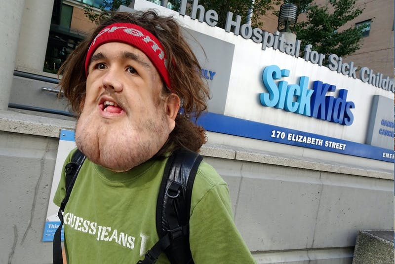 Nick Dismatsek, 20, of Inverness, N.S., who has battled neurofibromatosis his whole life, is seen outside the SickKids Hospital in Toronto where he has undergone two operations over the past three years. Dismatsek goes for his third and biggest operation on June 15 and a GoFundMe campaign has been launched to help him get there. CONTRIBUTED - Sharon Montgomery