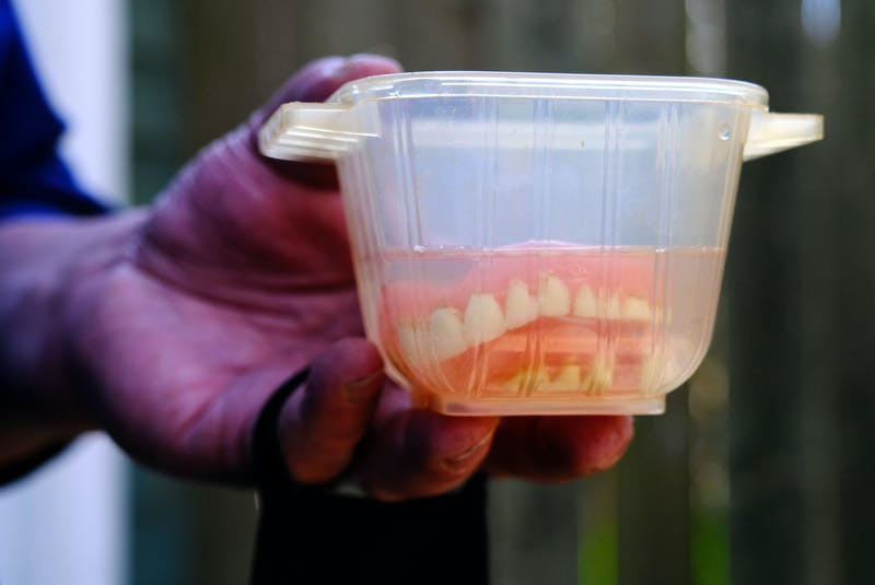 Kevin Le Blanc holds his upper and lower partial plate set of dentures, at his Halifax home Wednesday, April 21, 2021. - Tim Krochak
