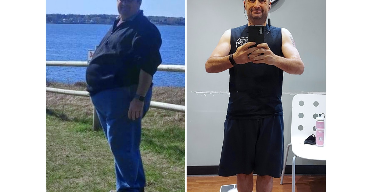 Pictou County man's weight loss getting international attention | Saltwire