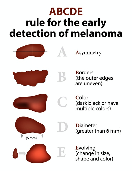 Some of the signs to look for in order to detect melanoma early. - RF Stock