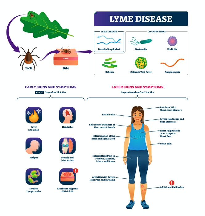 A look at some of the signs and symptoms of Lyme disease. - RF Stock