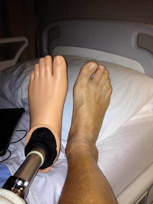 Chuck Keddy has nicknamed his prosthetic leg