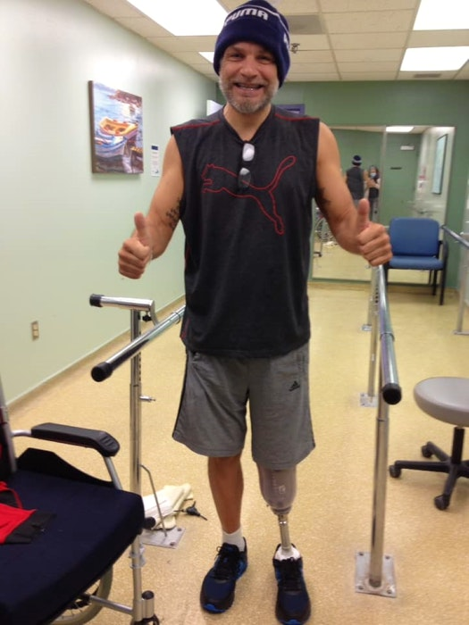 """""""It felt so strange to take those few steps on the back of my leg, and I had many balance issues,"""" says Chuck Keddy. - Contributed"""