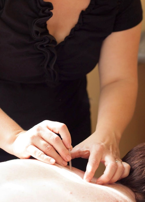 Jill Forse uses acupuncture in her Kentville, N.S. business to help clients with pain they are experiencing.   - Contributed