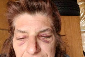 This photo illustrates the injuries that Karen Haggerty of Windermere suffered to her face after having a grand mal seizure in Berwick and falling to the pavement. CONTRIBUTED