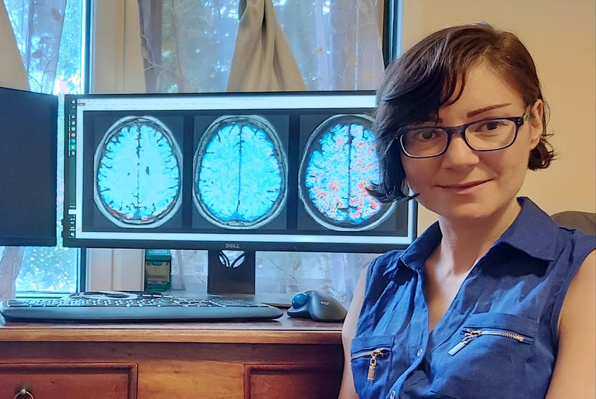 Lyna Kamintsky,  a PhD student in the medical neuroscience department at Dalhousie University, is studying how leaky blood vessels in the brain could be linked to cognitive difficulties for people who have diseases such as lupus and bipolar disorder. - Contributed