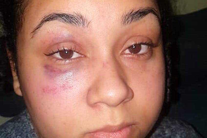Santina Rao shown with a black eye a day after her arrest at Mumford Road Walmart on Jan 15.  Facebook