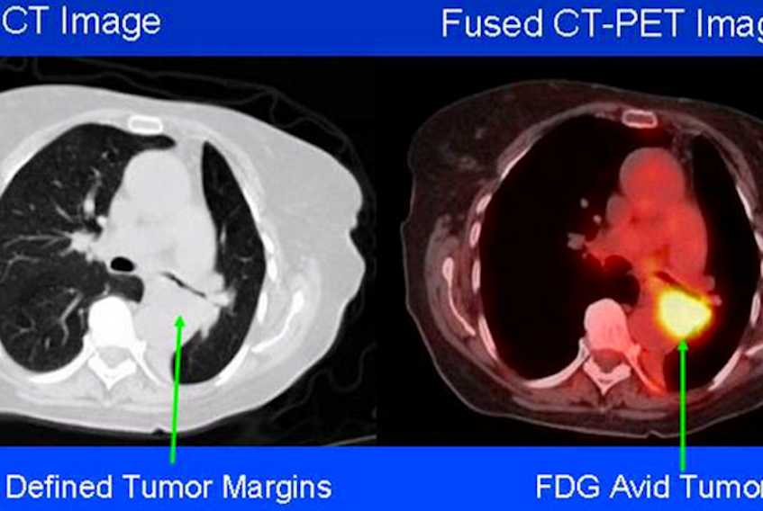 Sample of a combined CT-PET scan. (Source: NIH)