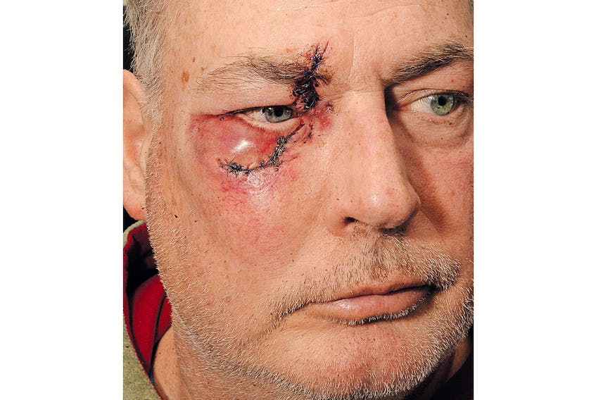 A skate to the face resulted in eight stitches, and waaaay to close to losing an eye.